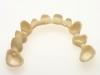 centro_protesico_dentario_lavorazioni10