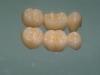centro_protesico_dentario_lavorazioni12