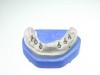 centro_protesico_dentario_lavorazioni14