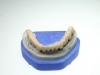 centro_protesico_dentario_lavorazioni15