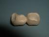 centro_protesico_dentario_lavorazioni19