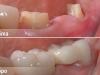 centro_protesico_dentario_lavorazioni2