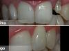 centro_protesico_dentario_lavorazioni3
