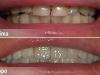 centro_protesico_dentario_lavorazioni4