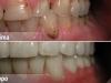 centro_protesico_dentario_lavorazioni5