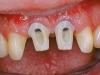 centro_protesico_dentario_lavorazioni9